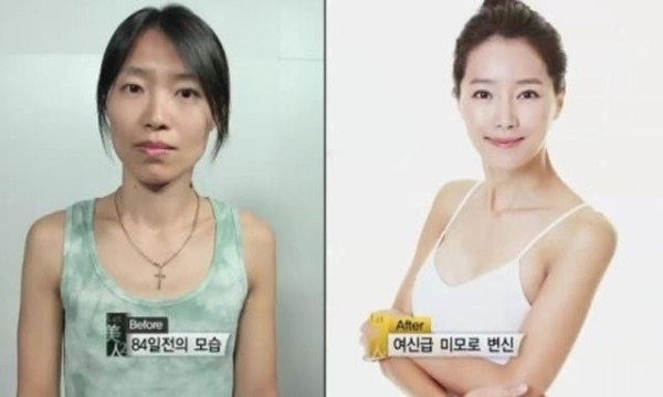 before_and_after_photos_of_korean_plastic_surgery_part_2_640_16