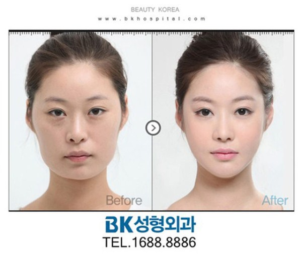 before_and_after_photos_of_korean_plastic_surgery_part_2_640_17