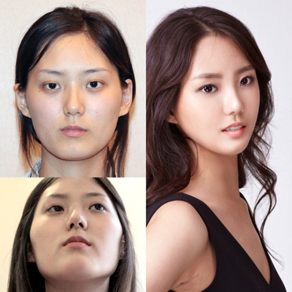 before_and_after_photos_of_korean_plastic_surgery_part_2_640_19