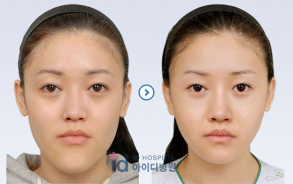 before_and_after_photos_of_korean_plastic_surgery_part_2_640_20
