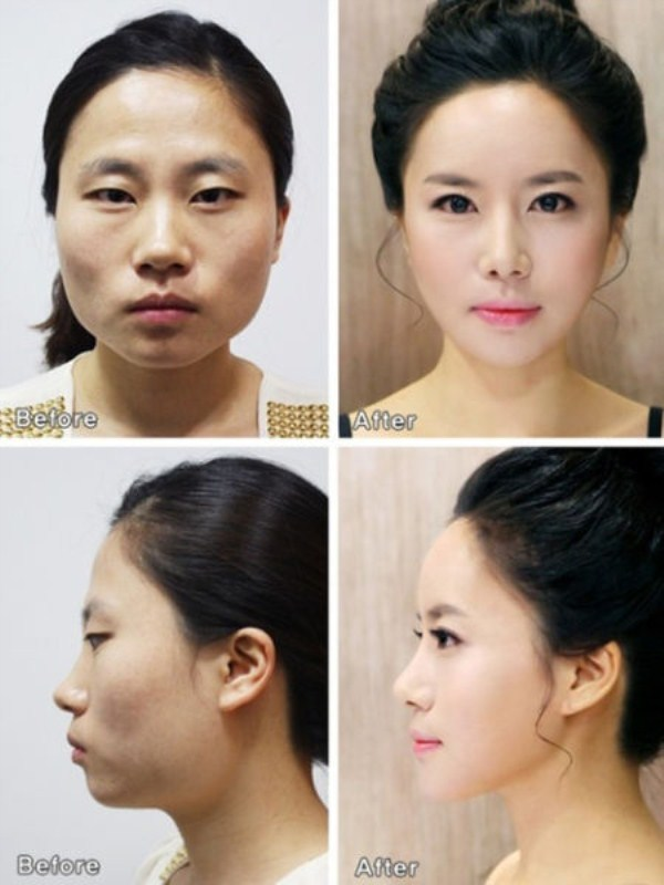 before_and_after_photos_of_korean_plastic_surgery_part_2_640_21