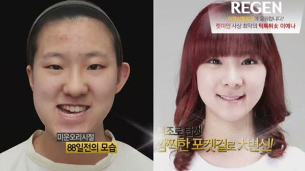 before_and_after_photos_of_korean_plastic_surgery_part_2_640_22