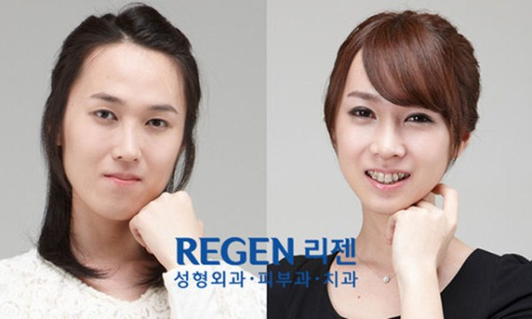 before_and_after_photos_of_korean_plastic_surgery_part_2_640_24
