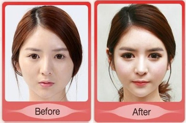 before_and_after_photos_of_korean_plastic_surgery_part_2_640_26