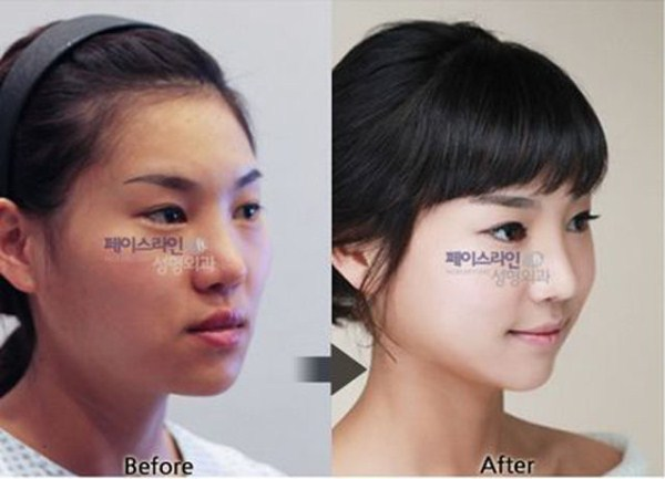 before_and_after_photos_of_korean_plastic_surgery_part_2_640_27