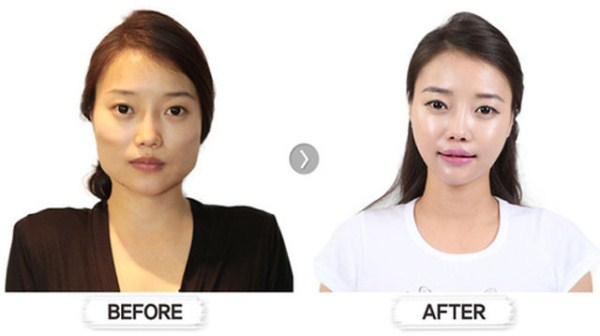 before_and_after_photos_of_korean_plastic_surgery_part_2_640_28