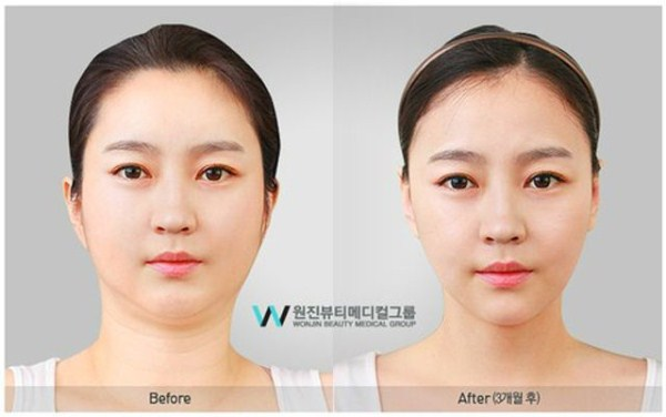 before_and_after_photos_of_korean_plastic_surgery_part_2_640_29