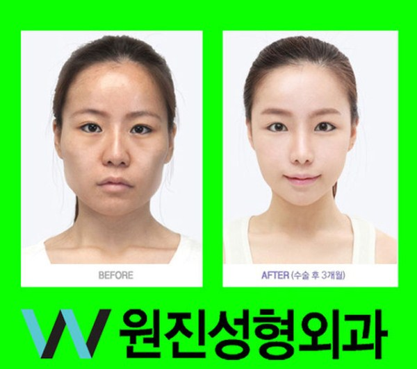 before_and_after_photos_of_korean_plastic_surgery_part_2_640_30