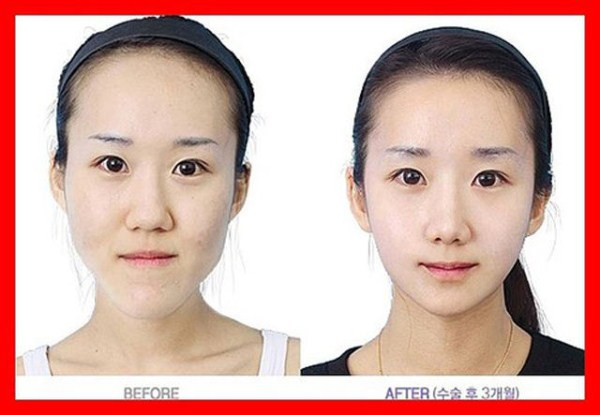 before_and_after_photos_of_korean_plastic_surgery_part_2_640_31