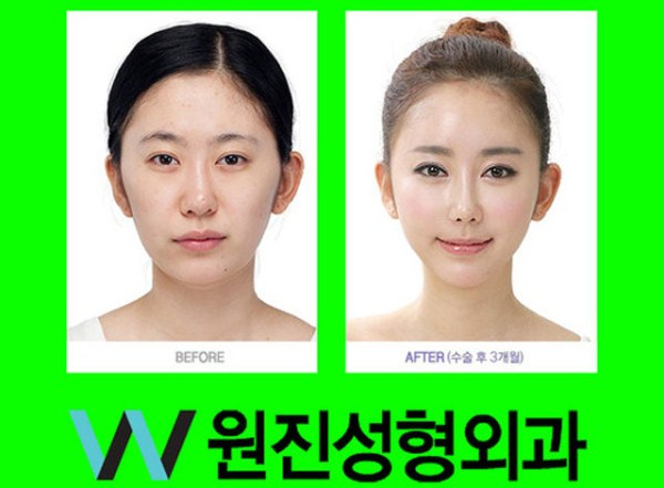 before_and_after_photos_of_korean_plastic_surgery_part_2_640_32