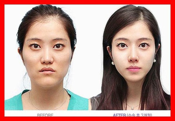before_and_after_photos_of_korean_plastic_surgery_part_2_640_33