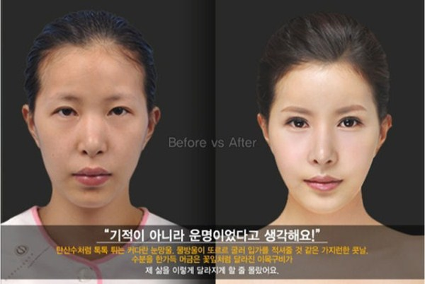 before_and_after_photos_of_korean_plastic_surgery_part_2_640_34