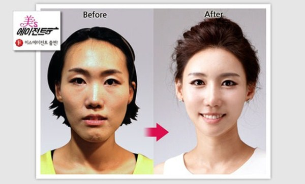 before_and_after_photos_of_korean_plastic_surgery_part_2_640_35