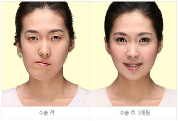 before_and_after_photos_of_korean_plastic_surgery_part_2_640_36