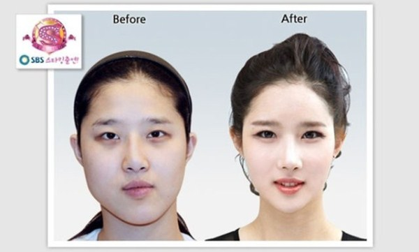 before_and_after_photos_of_korean_plastic_surgery_part_2_640_37