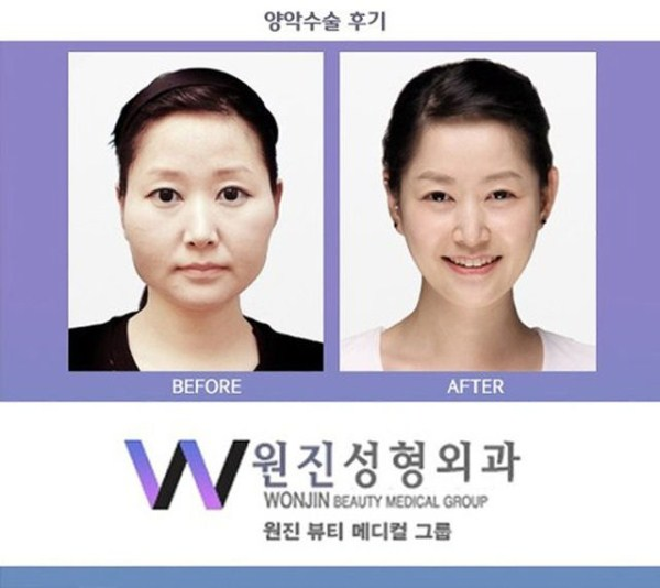 before_and_after_photos_of_korean_plastic_surgery_part_2_640_38