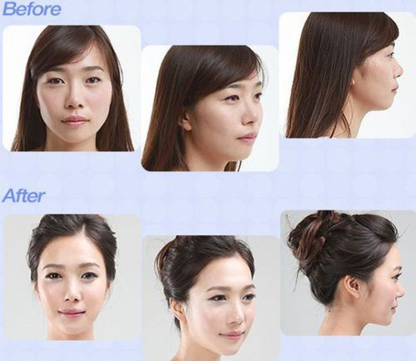 before_and_after_photos_of_korean_plastic_surgery_part_2_640_39