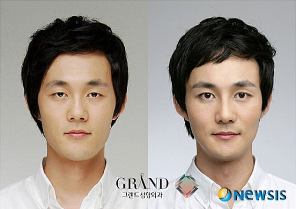 before_and_after_photos_of_korean_plastic_surgery_part_2_640_40