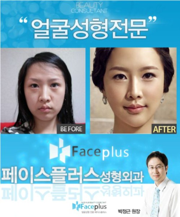 before_and_after_photos_of_korean_plastic_surgery_part_2_640_41