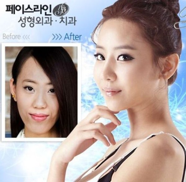 before_and_after_photos_of_korean_plastic_surgery_part_2_640_42
