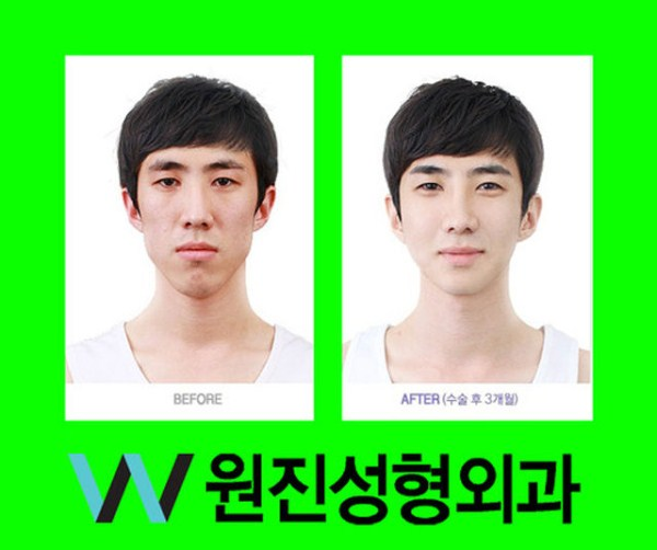 before_and_after_photos_of_korean_plastic_surgery_part_2_640_43