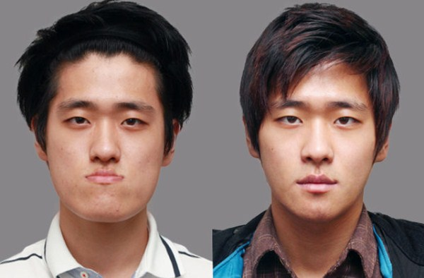 before_and_after_photos_of_korean_plastic_surgery_part_2_640_44
