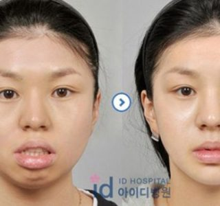 Young Koreans Before and After Plastic Surgery (62 photos)