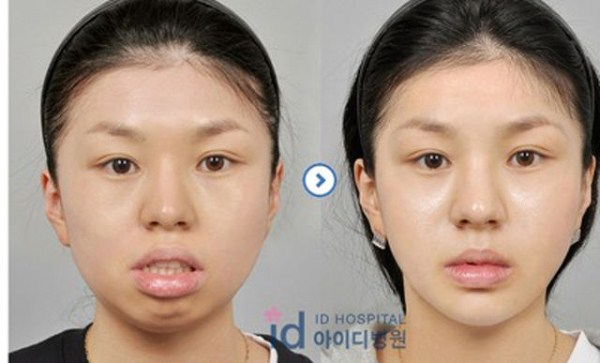 Young Koreans Before and After Plastic Surgery (62 photos) 46