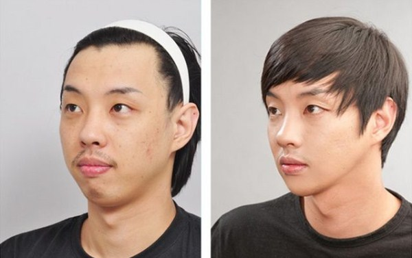 before_and_after_photos_of_korean_plastic_surgery_part_2_640_46