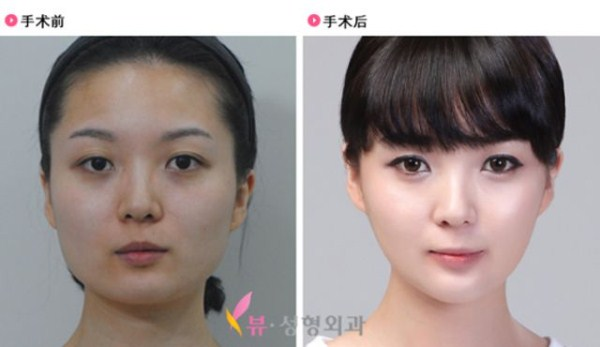 before_and_after_photos_of_korean_plastic_surgery_part_2_640_47
