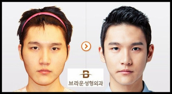 before_and_after_photos_of_korean_plastic_surgery_part_2_640_48