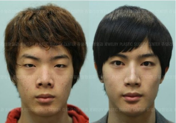 before_and_after_photos_of_korean_plastic_surgery_part_2_640_49