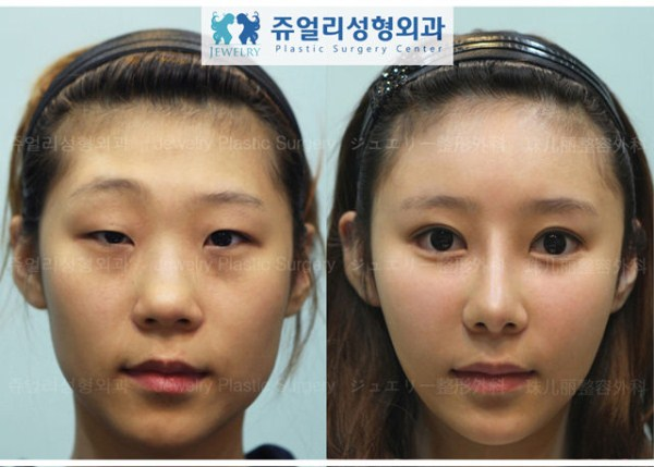 before_and_after_photos_of_korean_plastic_surgery_part_2_640_50