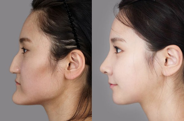 before_and_after_photos_of_korean_plastic_surgery_part_2_640_51