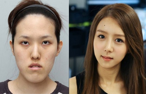 before_and_after_photos_of_korean_plastic_surgery_part_2_640_52