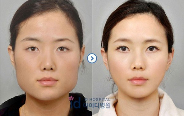 before_and_after_photos_of_korean_plastic_surgery_part_2_640_53