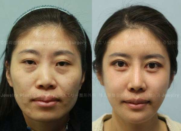 before_and_after_photos_of_korean_plastic_surgery_part_2_640_54