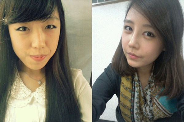 before_and_after_photos_of_korean_plastic_surgery_part_2_640_55