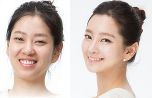 before_and_after_photos_of_korean_plastic_surgery_part_2_640_56