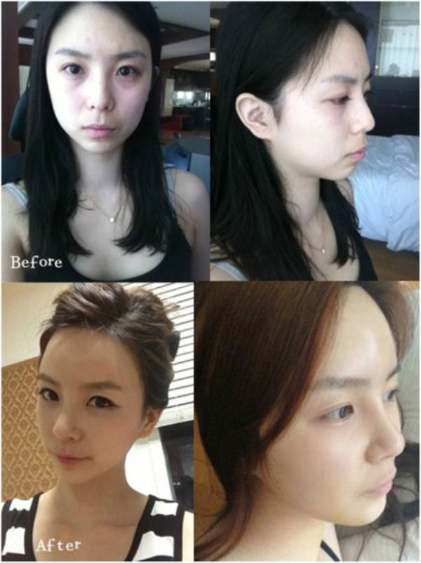 before_and_after_photos_of_korean_plastic_surgery_part_2_640_57