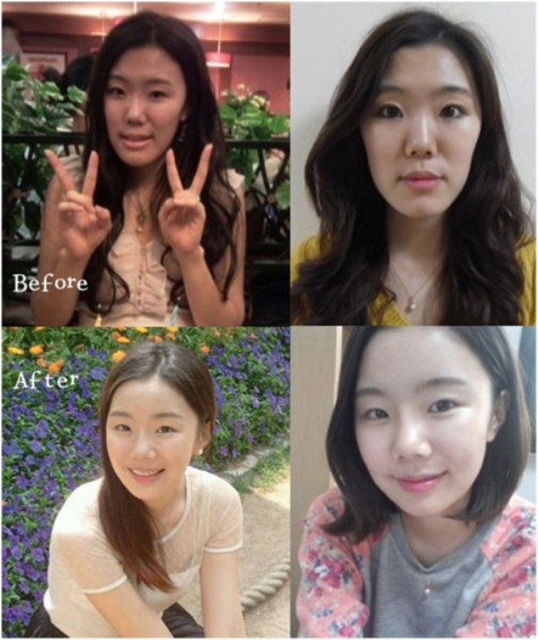 before_and_after_photos_of_korean_plastic_surgery_part_2_640_58