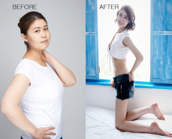 before_and_after_photos_of_korean_plastic_surgery_part_2_640_59