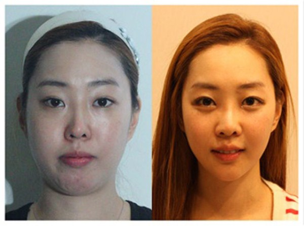 before_and_after_photos_of_korean_plastic_surgery_part_2_640_60