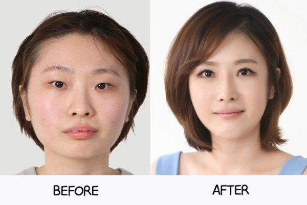 before_and_after_photos_of_korean_plastic_surgery_part_2_640_61