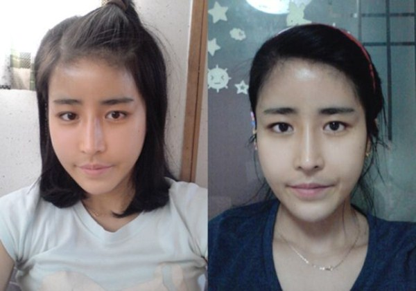 before_and_after_photos_of_korean_plastic_surgery_part_2_640_62