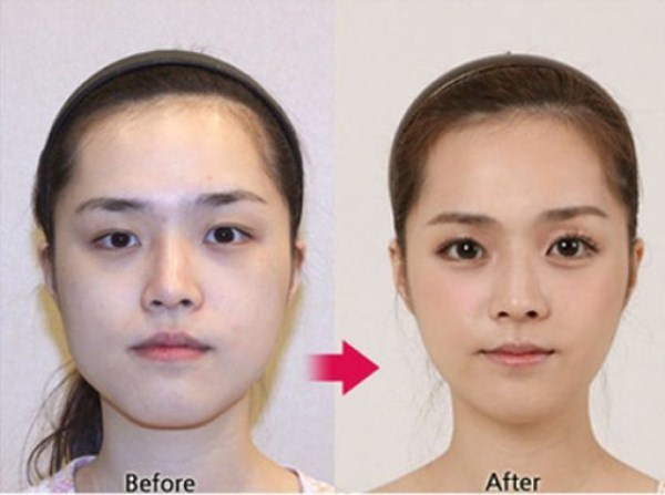 before_and_after_photos_of_korean_plastic_surgery_part_2_640_63