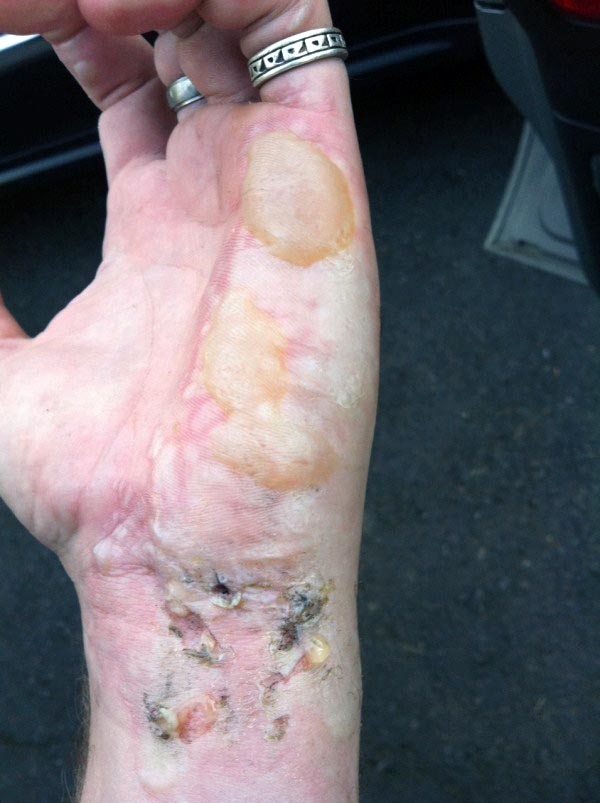 burnt-hand (1)