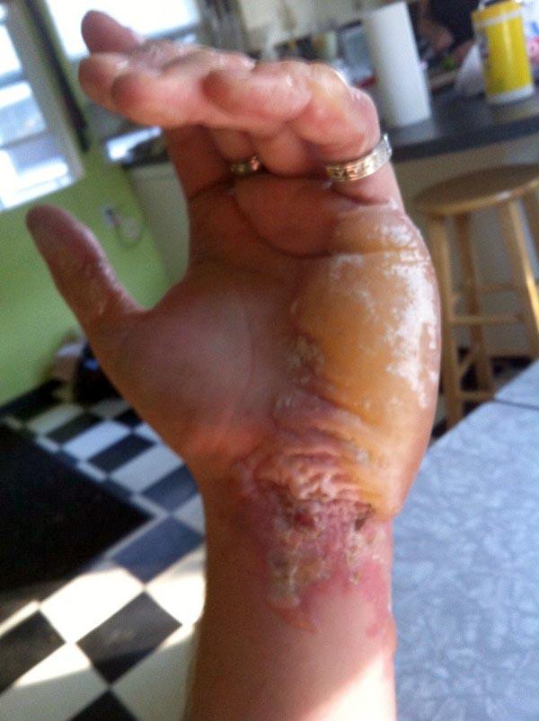 burnt-hand (3)