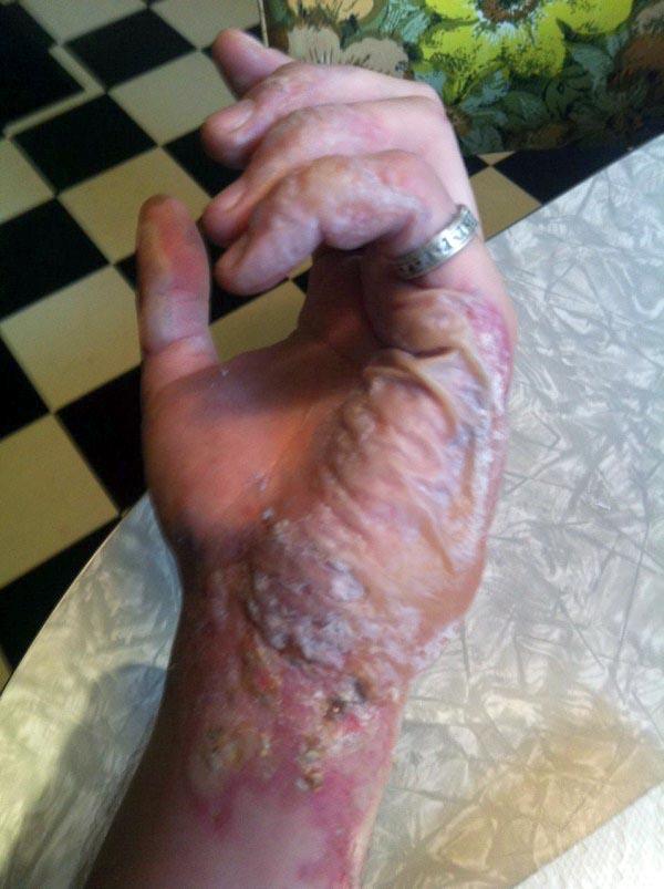 burnt-hand (4)