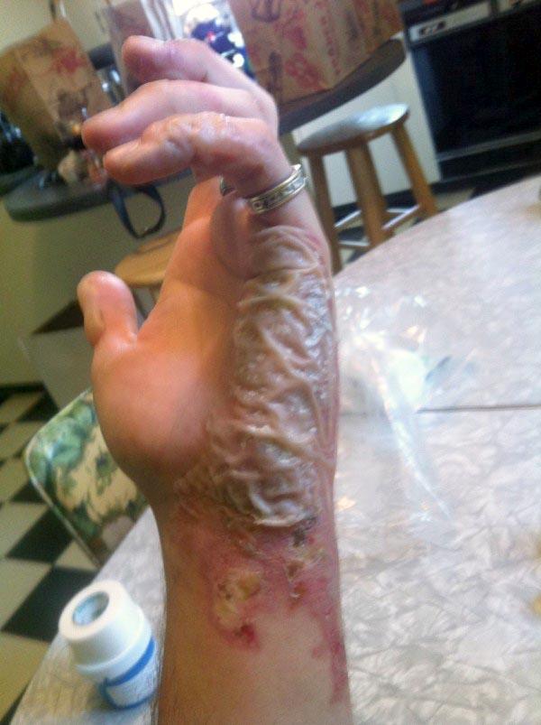 burnt-hand (5)